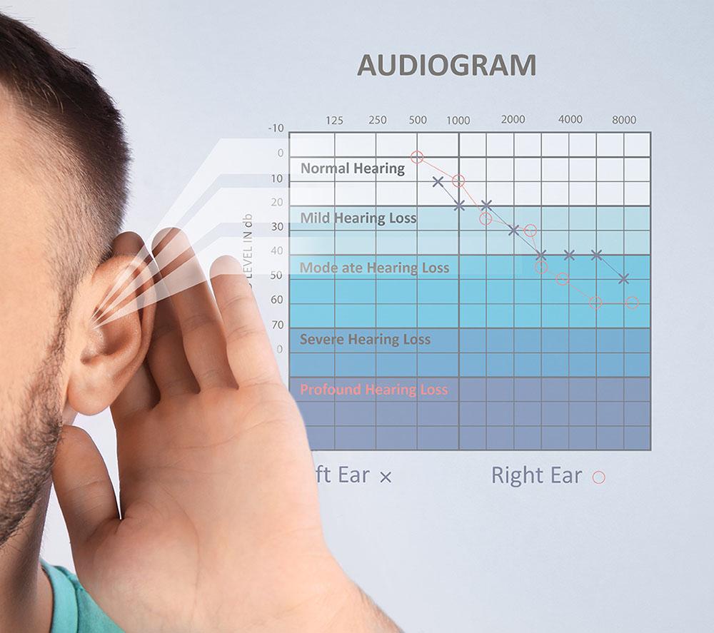 aparaty słuchowe toruń prosta 30 mediucm auris
